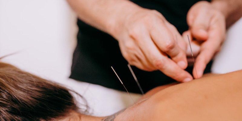 En alternativ DAB behandler er typisk uddannet i forskellige retninger. Akupunktur er en retning